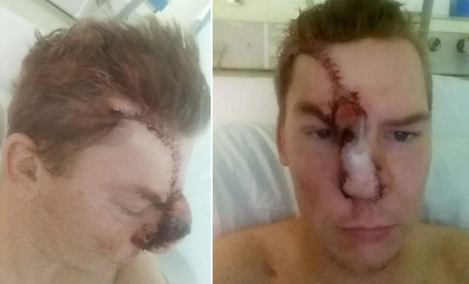 Британец в пьяной драке откусил посетителю паба нос