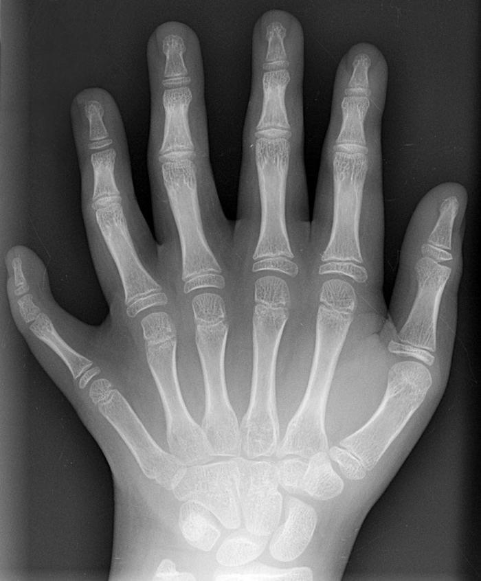 рентген, жесть, удивительно,