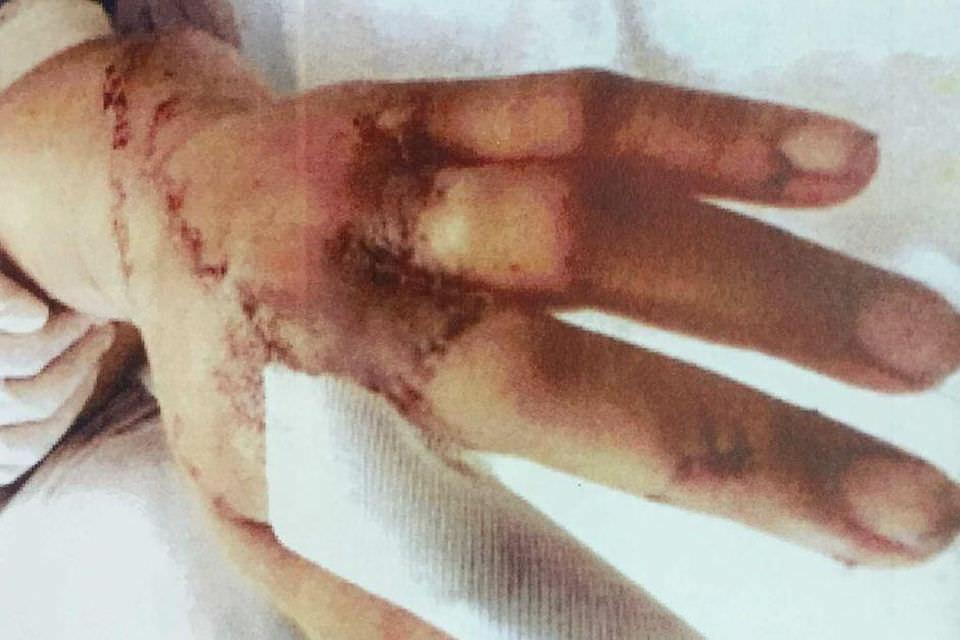Женщина простила мужа, который отрубил ей пальцы на руках и ногах. Фото №2